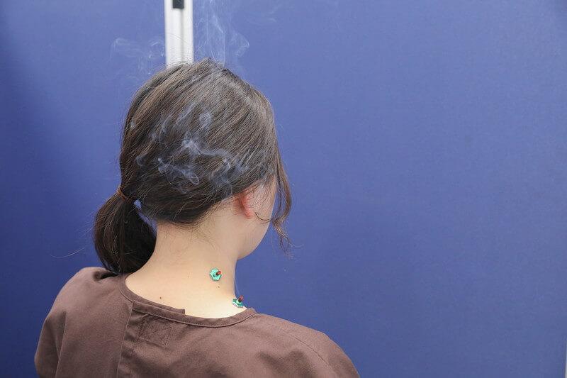 久喜整骨院でのお灸の施術の様子